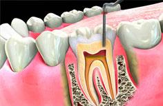 root of the teeth