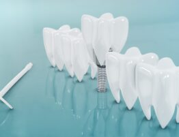 Dentist in Miami Beach fl