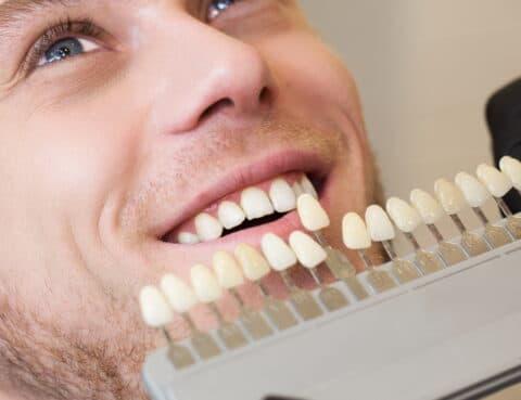 man at cosmetic dentistry