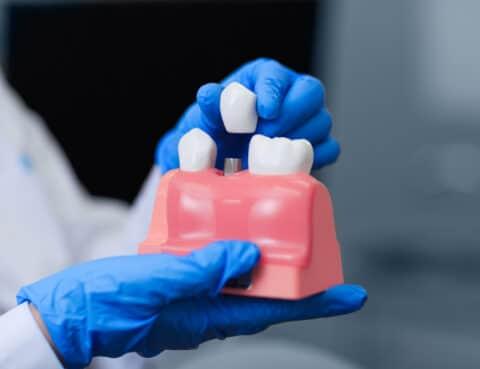dental implant restoration procedure