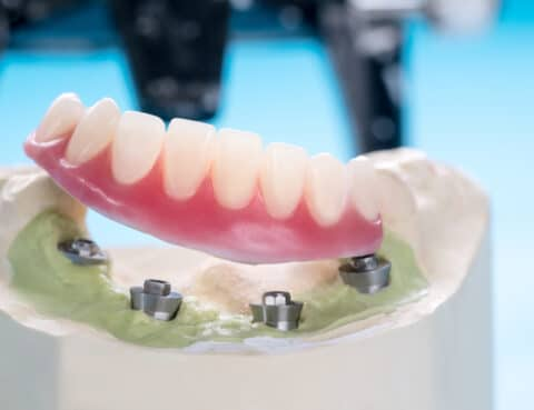 Closeup/ Dental implants supported overdenture on blue background/ Screw retained/ implant restorations.