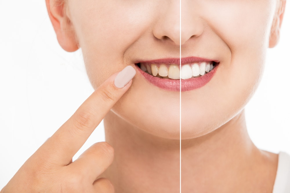 Teeth whitening before after close-up